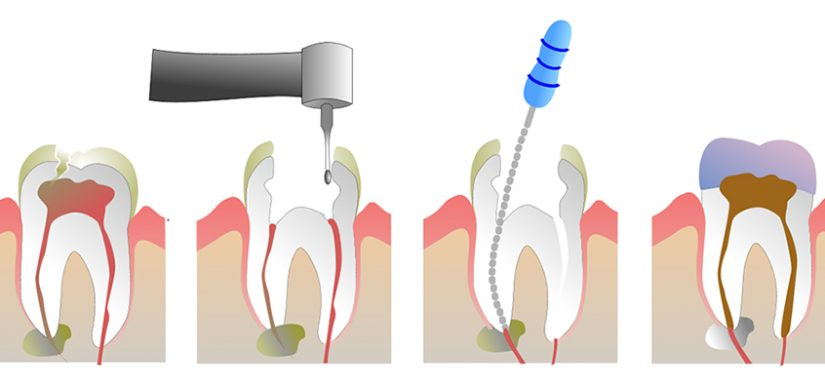 Root-Canal-Therapy-1