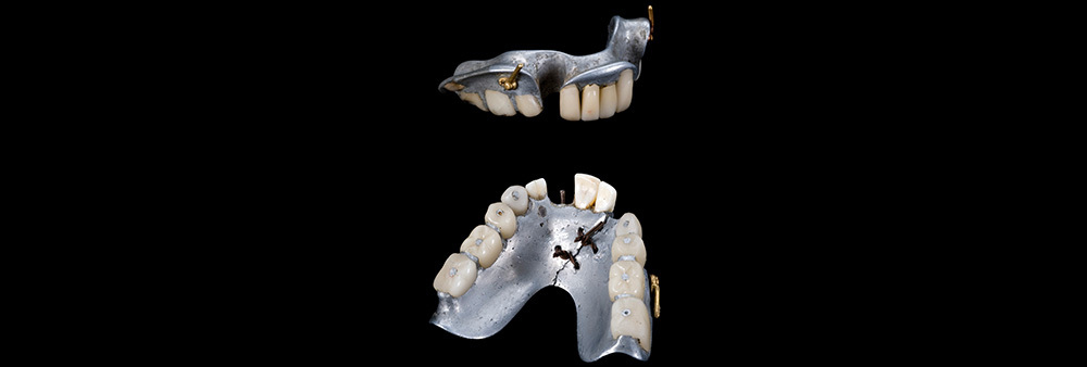 Dentures and Partials-2