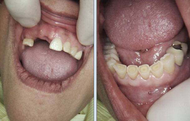 Cosmetic Dentistry Before image