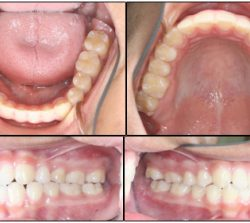 After Orthodontics-case1