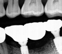 Implant-case-3-after1