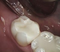 Bloomfield Dental center - Cosmetic Dentistry Case - After