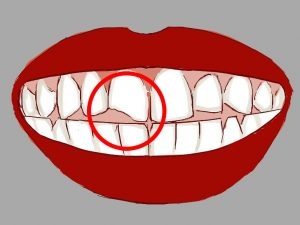 Bllomfield dental center - Blog - How to deal with cracked tooth