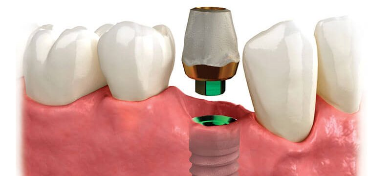 Bloomfield Dental Center - Single Tooth Dental Implants