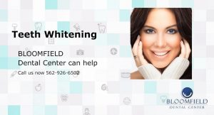 Teeth Whitening | Bloomfield Dental Center | Top Cerritos Dentist