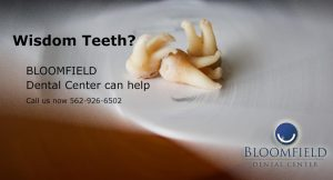 Cerritos Dentist | Dental Center Orange County | Wisdom Teeth Removal