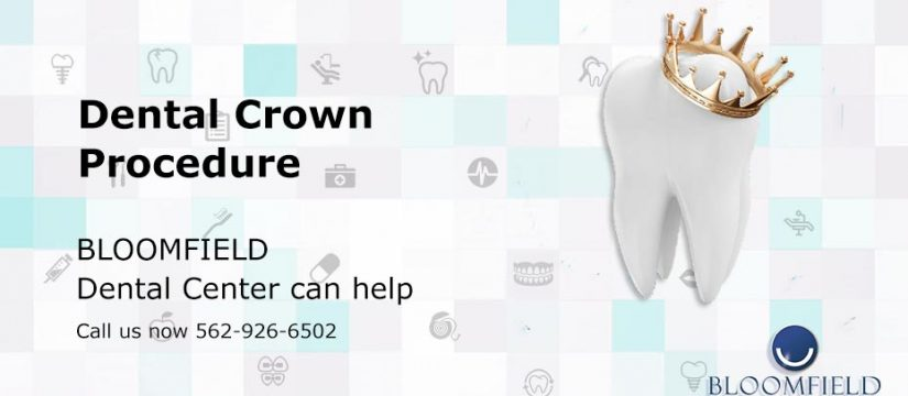 Dental Crown Procedure | Dental Center | Top Cerritos Dentist