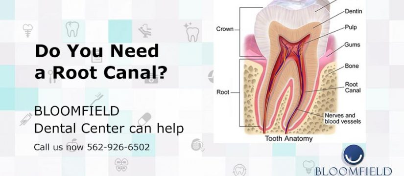 Do you need a Root Canal | Dental Center | Top Cerritos Dentist