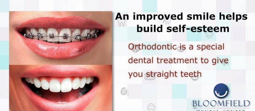 Orthodontic is a special dental treatment to give you straight teeth